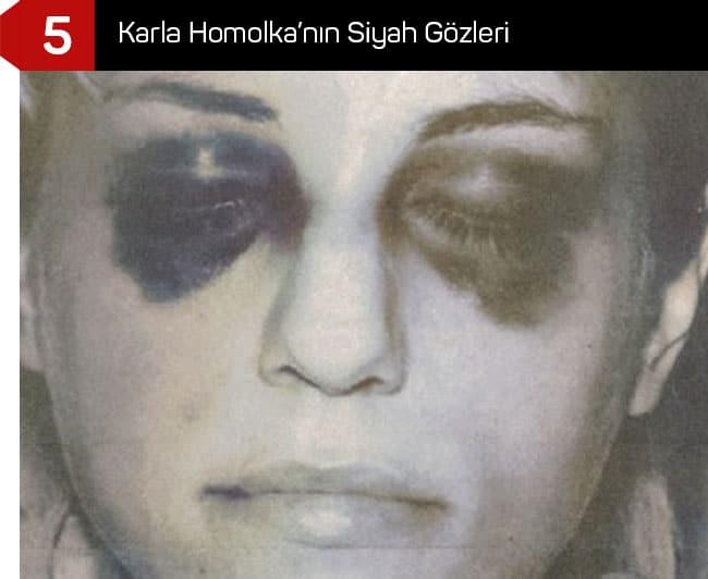 Karla Homolka'nın Siyah Gözleri